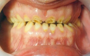 Treatment of patients with pathological tooth wear (bruxism)