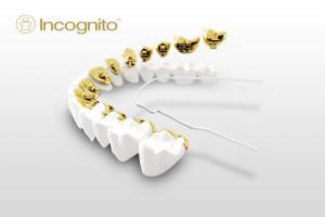 Leczenie ortodontyczne, system incognito