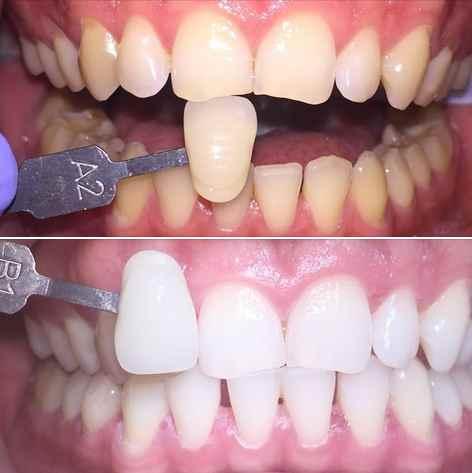 wybielanie zębów wrocław, profesjonalne wybielanie zębów