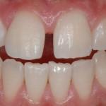 Wybielanie zębów - po