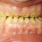 Patologiczne starcie zębów -stan przed leczeniem