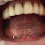 Mikroimplanty w żuchwie