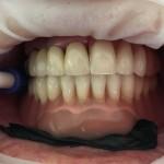 Proteza na zaczepach w postaci mikroimplantów