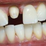 Łącznik indywidualny na implancie zęba 11