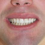 Estetyczne uzupełnienia kompozytowe zębów górnych po wcześniejszym wybielaniu.