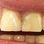 Przed leczeniem (liczne wypełnienia kompozytowe w zębach przednich)