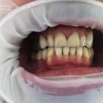 Odbudowa zębów przednich przy pomocy licówek porcelanowych.