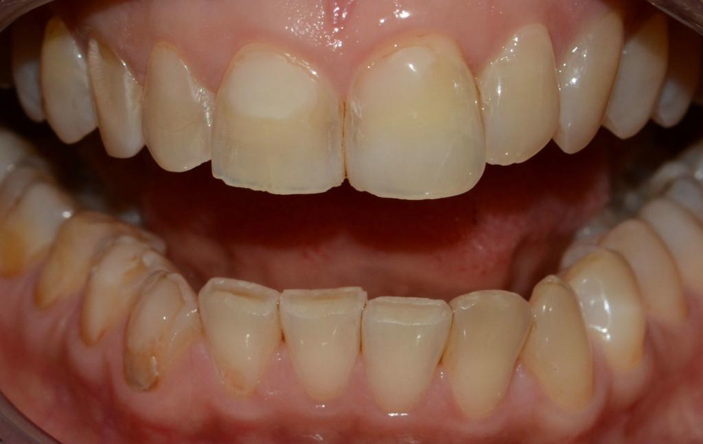 Wybielanie zębów - przed