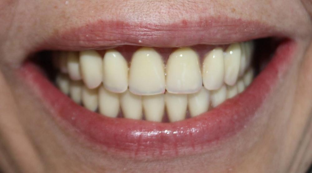 Protetyka - Komfort Pacjenta przekłada się na jego uśmiech!:)