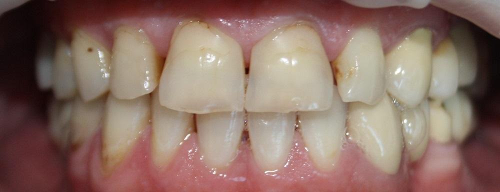 zęby przed zabiegiem implantologicznym