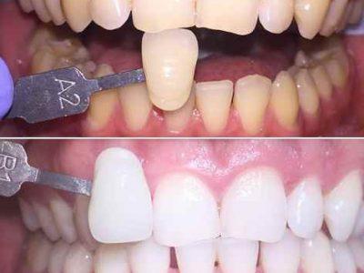 wybielanie zębów wrocław