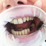 Implanty - pojedyncze braki zębowe. Łączniki indywidualne. STARSdent, implanty Wrocław