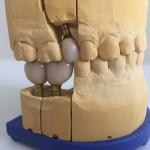 Pojedyncze braki zaopatrzone koronami na implantach-modele robocze, STARSdent, implanty Wrocław